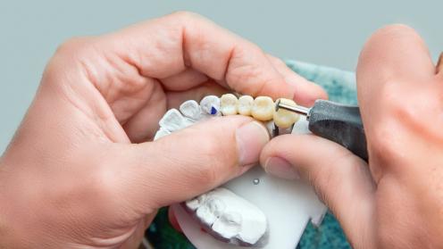 Zahnteilprothese wird auf einem Gebissmodell aus Keramik von einem Zahnarzt bearbeitet