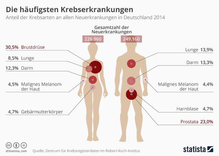 Infografik 19586 Die Haeufigsten Krebserkrankungen In Deutschland N in Krebs: So verteilen sich die Fallzahlen