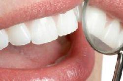 CSS und Indento kooperieren bei Zahnersatz