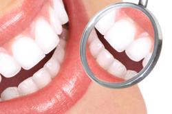 Zahnzusatz-Rating: Zehn Versicherer mit Top-Note