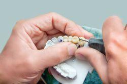 Vergleichsportale für Zahnzusatzversicherungen